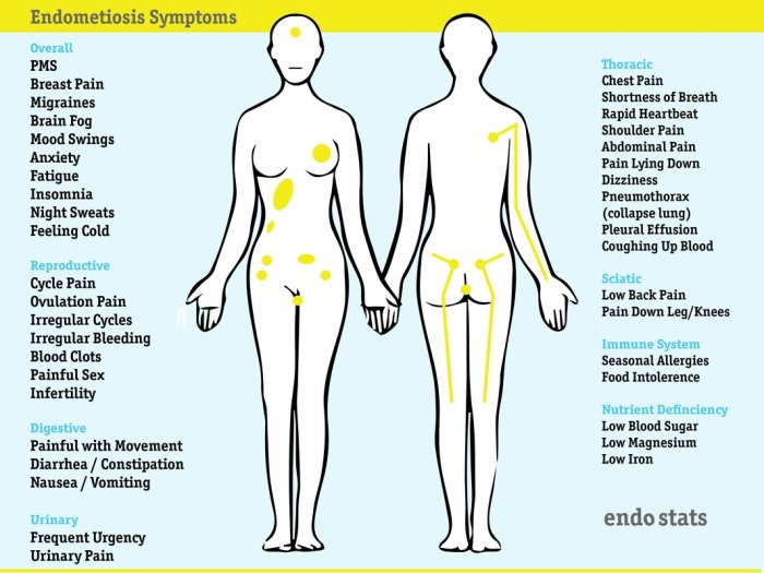 endostatsgraphics-round-symptoms-06_3_orig